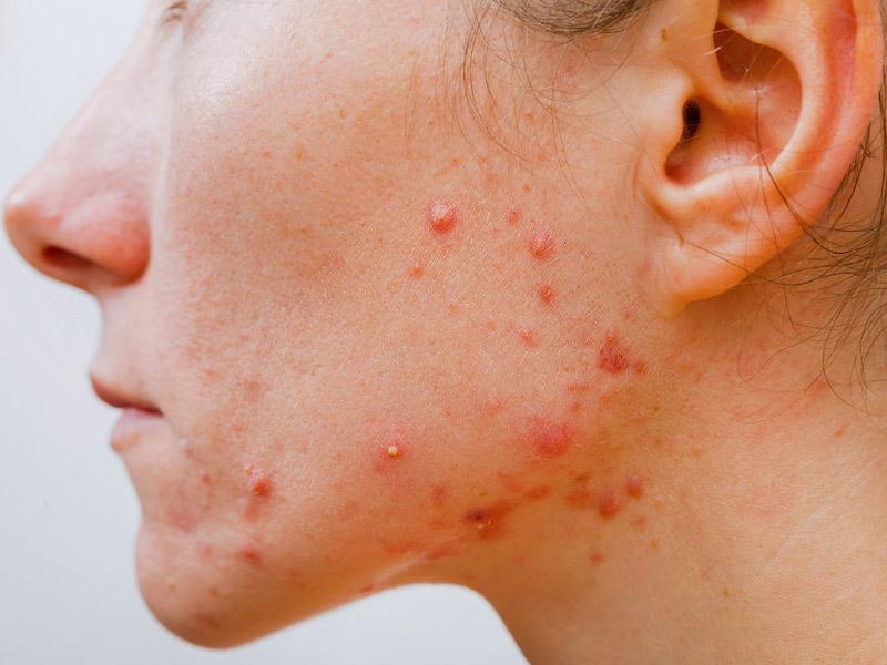 Cursus acne specialisatie